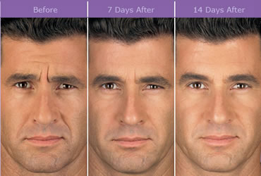 botox_beforeafter1